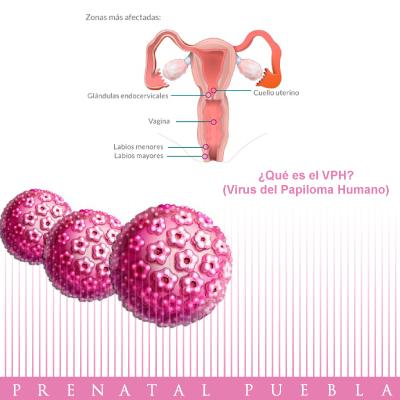 virus de papiloma y embarazo